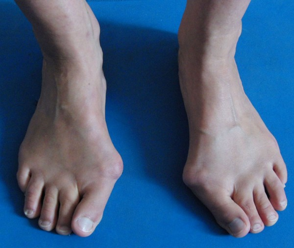 Click image for larger version  Name:Hallux%20Vallux%20bilateral%20.jpg Views:595 Size:53.7 KB ID:163771
