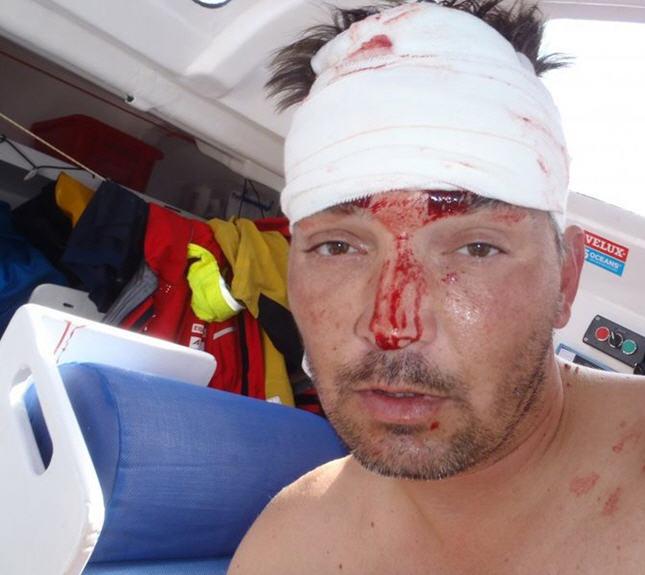 Click image for larger version  Name:Gutek-Injured-from Wind Gen.jpg Views:72 Size:51.7 KB ID:54353